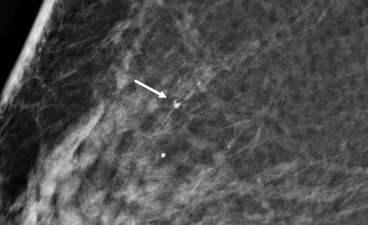 Breast Cancer Discovered In Its Preliminary Stages In Mammography
